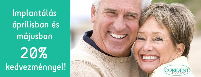 Áprilisban és májusban 20% kedvezmény az implantátumokra!